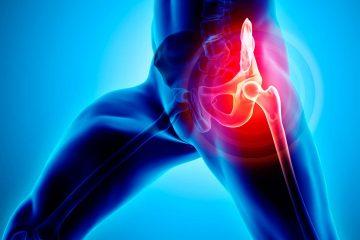 Displasia congenita dell'anca - Sport e salute