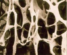 Osteoporosi - Sport e salute